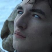 Bran Stark occhi bianchi